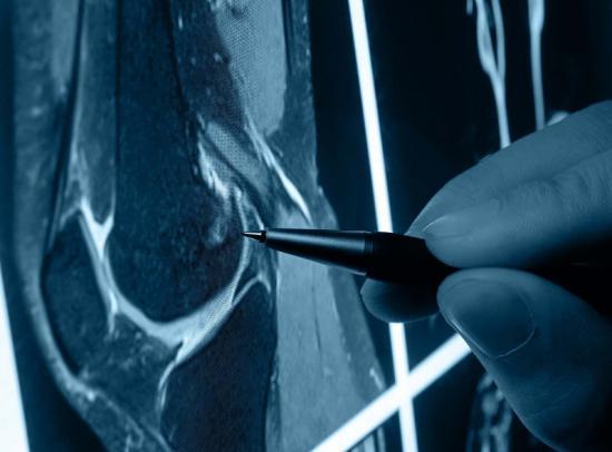 Лечение народными средствами артроза тазобедренного сустава: за и против