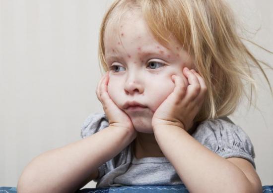 С кожи лица Фукорцин нужно удалять аккуратно
