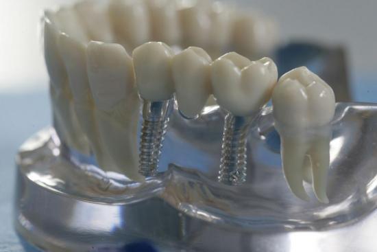 Иногда только имплантация может помочь решить проблемы с зубами