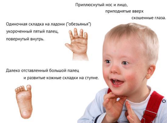 какие признаки наличия глистов у человека