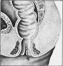 Геморроидальная колика что это