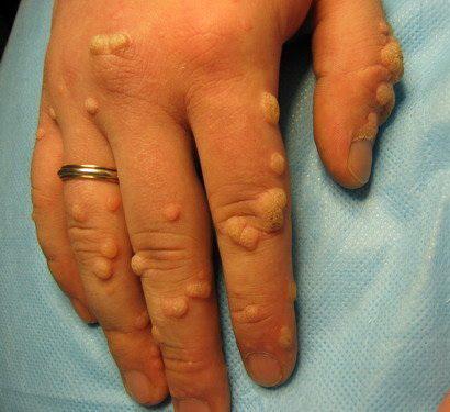 Папилломавирус человека у мужчин симптомы и лечение