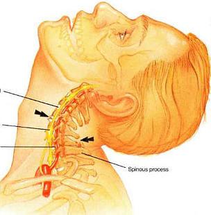 Болит спина в области почек что это такое