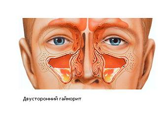 Болит горло пропадает голос и насморк