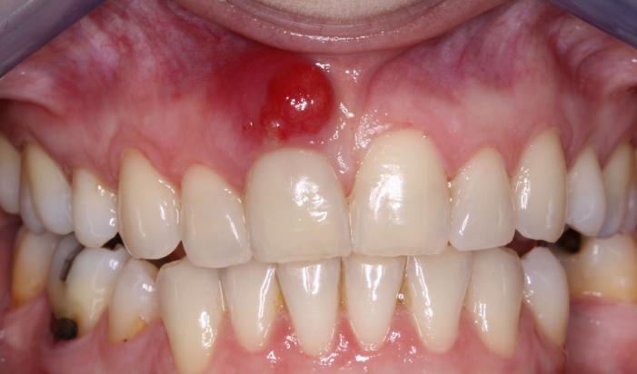 свищ зубной фото
