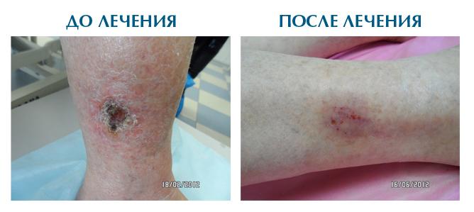 диета при трофических язвах на ногах