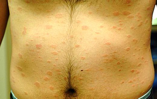 венерические заболевания фото мужчин