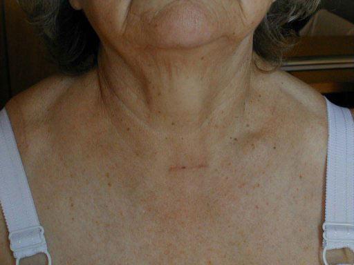 после удаления щитовидной железы выпадают волосы
