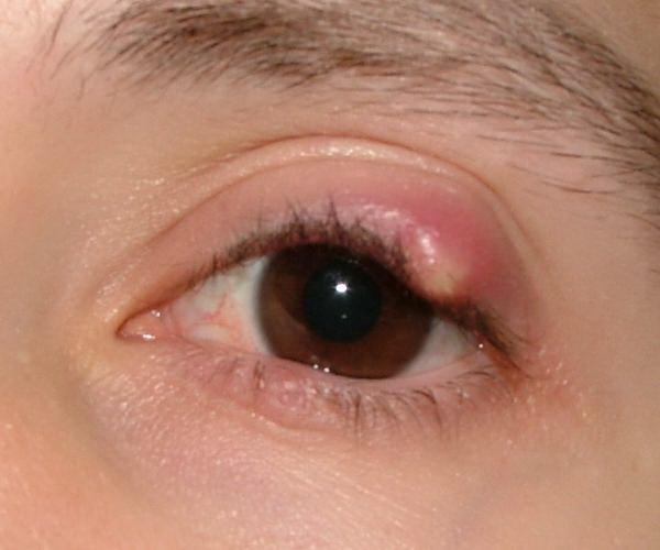 Как вылечить зрение за 1 день в домашних условиях