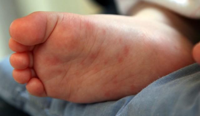 может быть аллергия на кукурузную кашу