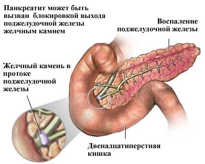 Боль в правой стороне грудной клетке
