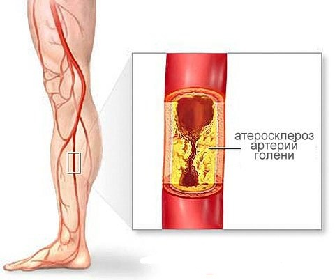 Диета при повышенной норме холестерина