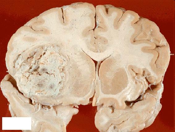 Операция при опухоли головного мозга
