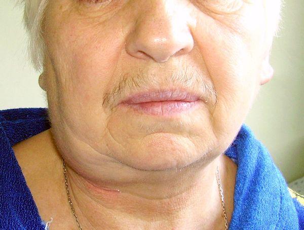 Миозит шеи у детей 3 лет лечение