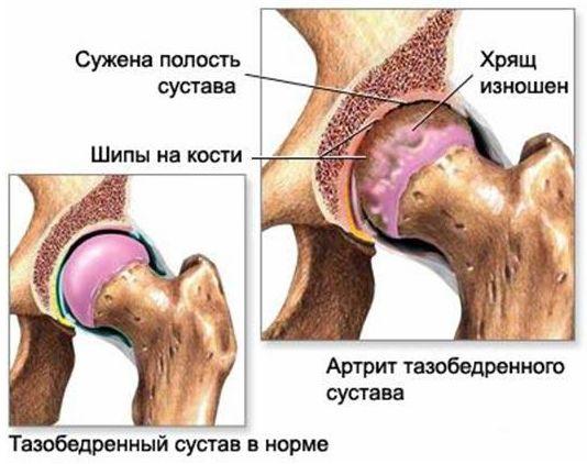 Киста тазобедренного сустава симптомы и лечение
