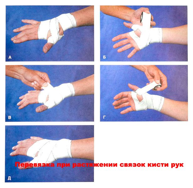 Что делать при растяжении связок кисти руки – алгоритм действий
