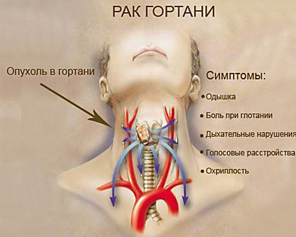 Рак трахеи  симптомы болезни профилактика и лечение Рака