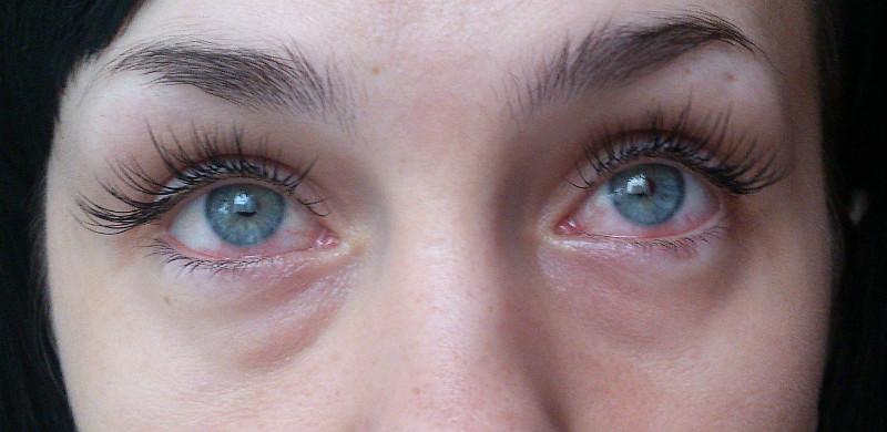 Травмы роговицы глаза, лечение, проявления и диагностика