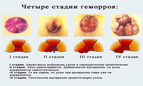 Свечи для лечения анального зуда