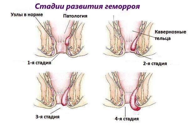 Клинические рекомендации лечение геморроя