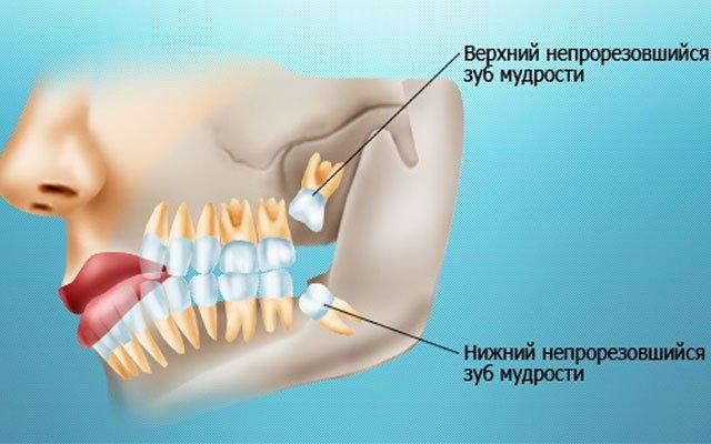 Чем лечить зуб мудрости при прорезывании зубов