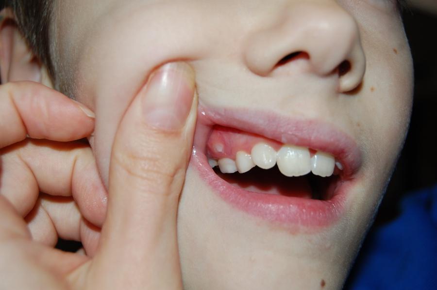 Один зуб выше другого у ребенка