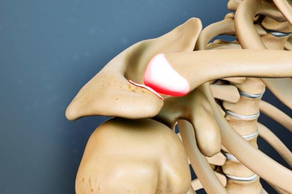 артрит тазобедренного сустава симптомы и лечение народными средствами