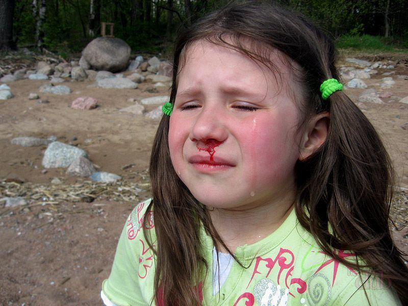 Как сделать что бы у меня пошла кровь из носа