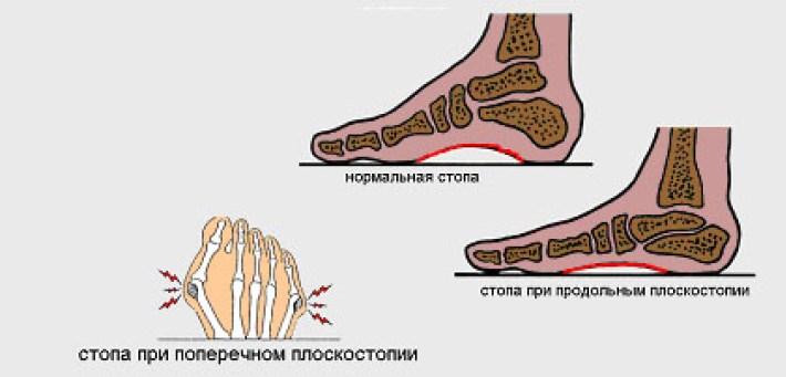 Поперечное плоскостопие: симптомы, лечение, фото, профилактика