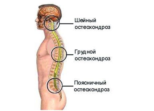 Гимнастика от остеохондроза грудного и шейного отдела по бубновскому