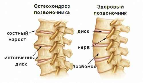 Программы лечения головной боли в