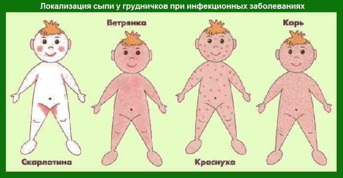 аллергическая сыпь на лице у ребенка фото
