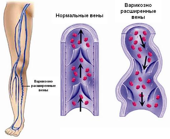 Лечение варикоза народными средствами