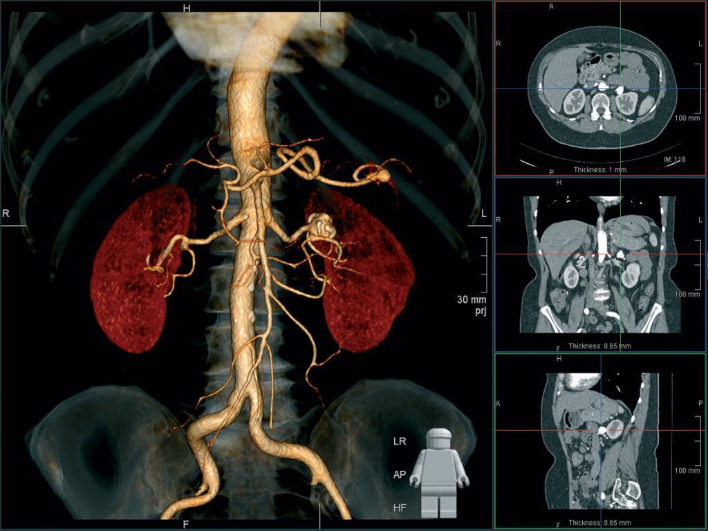 Компьютерная томография почек и надпочечников