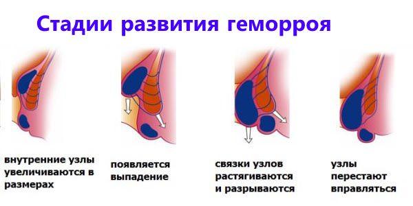 Геморрой после родов лечение свечами и мазью фото