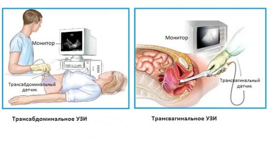 Типы эндометриоза