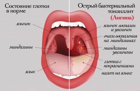 ангина фото горло у детей