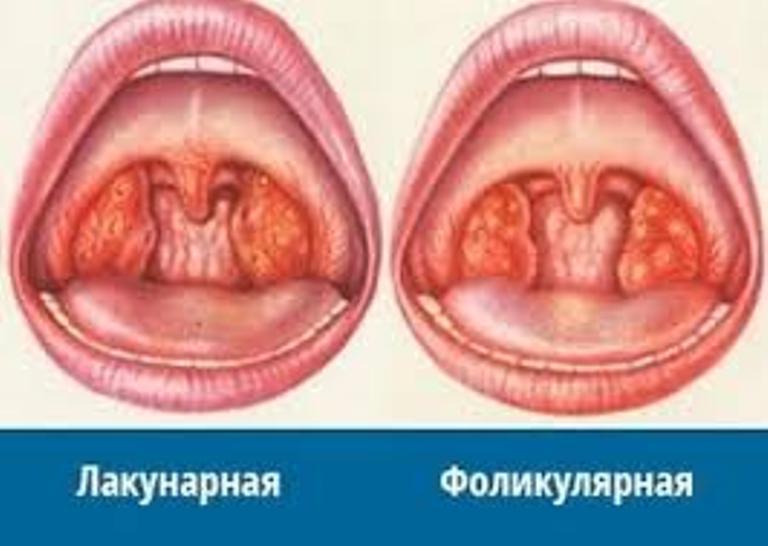 Ангина фото симптомы и лечение у взрослых и детей