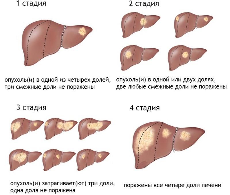 Причины и лечение увеличенной печени. Диета препараты и народные средства