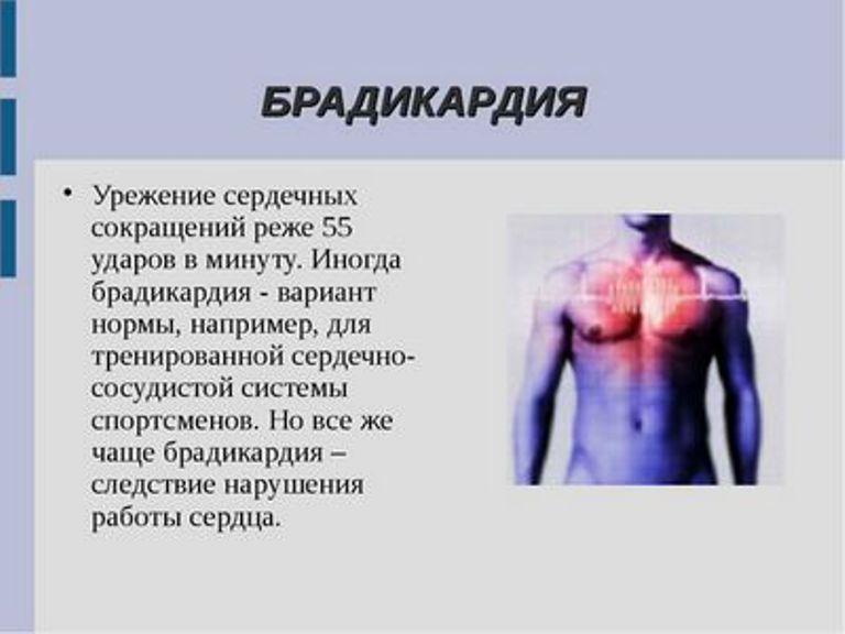 Брадикардия - причины, симптомы, диагностика и лечение