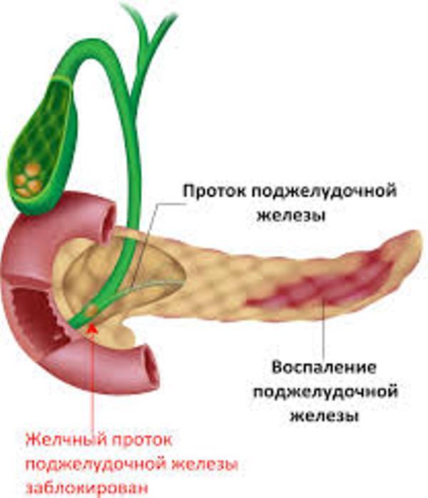 Как снять воспаление поджелудочной железы народными средствами