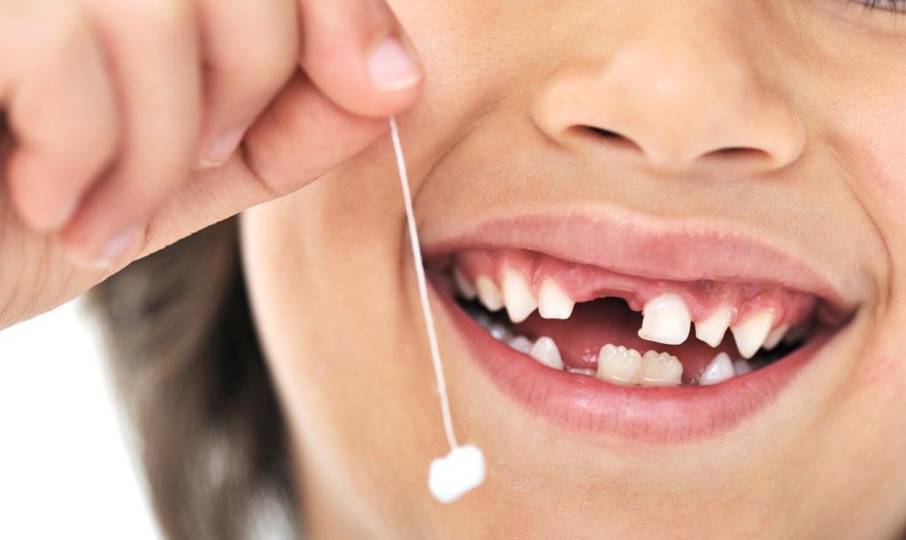 Череп с молочными зубами